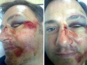 Así quedó el rostro de Ricardo Fusco luego de la agresión.